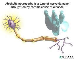 Alcohol Addiction Research Paper UsefulResearchPaperscom